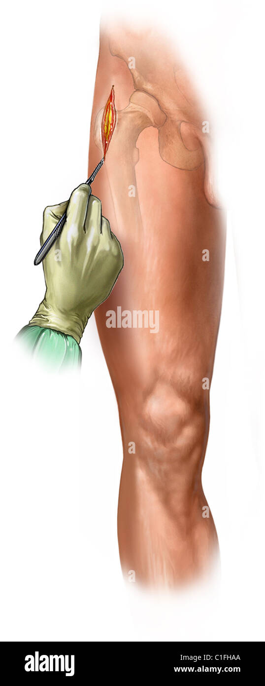 This medical illustration illustrates initial incision in a tibial fixation procedure. - Stock Image
