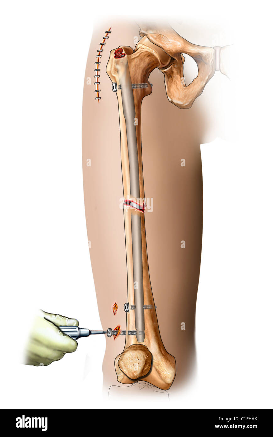 Internal fixation of femur fracture with intramedullay rod in place within the femoral canal - Stock Image