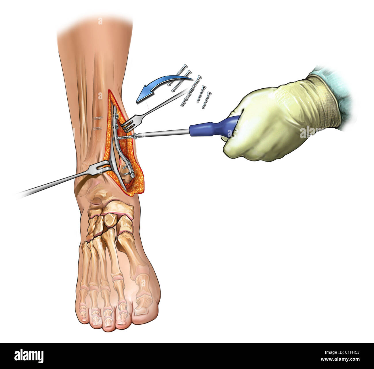 This medical illustration depicts the surgical fixation of comminuted medial maleollar fracture. - Stock Image