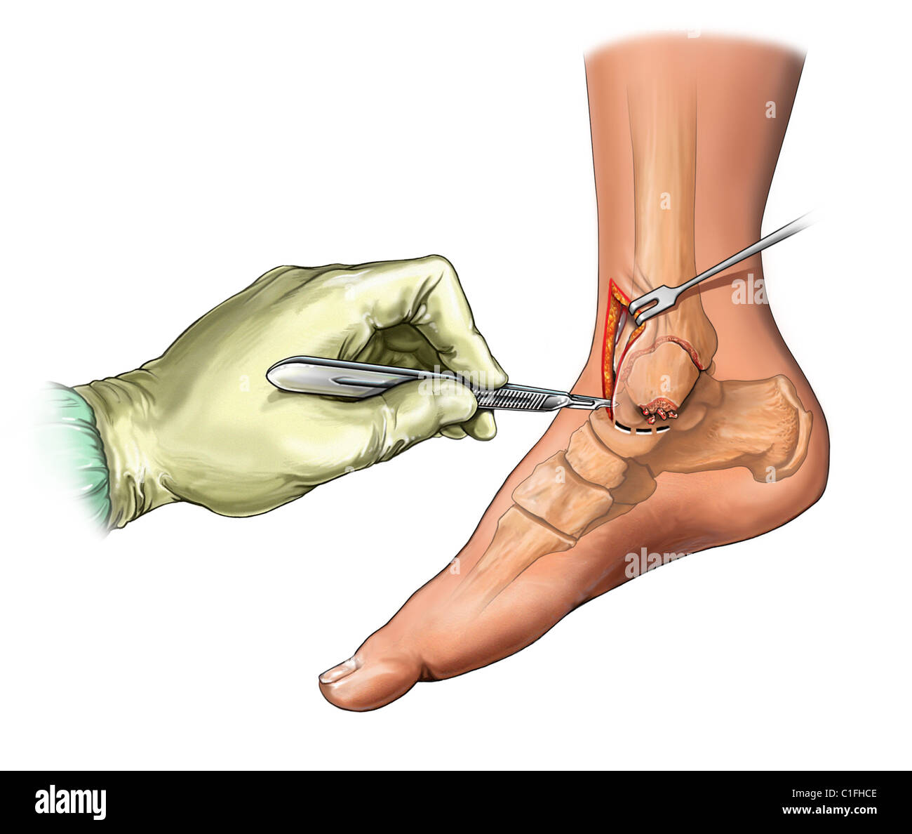 This medical illustration illustrates an anteromedial incision to the ankle. - Stock Image