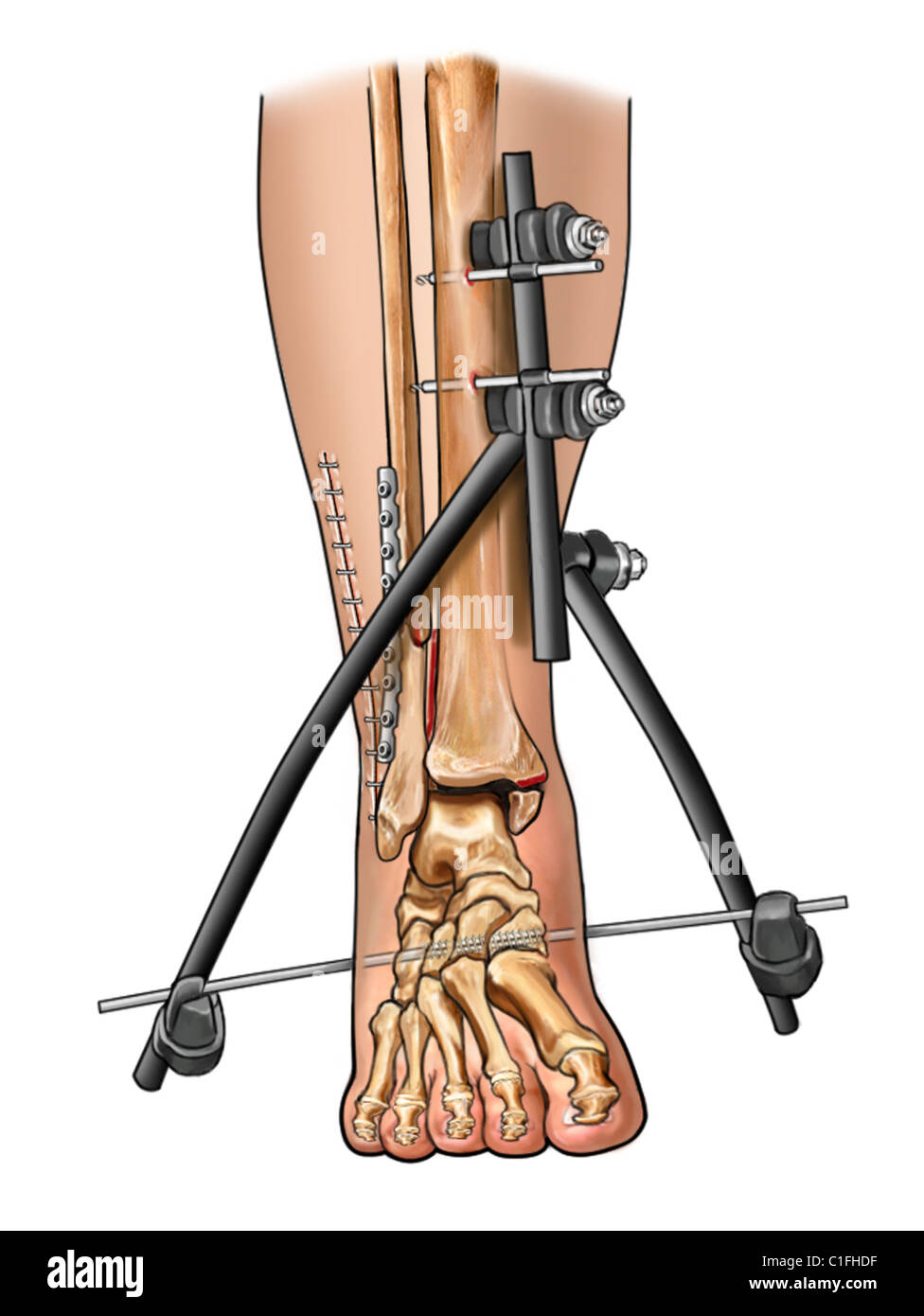 This medical illustration depicts the surgical fixation of comminuted fibular fracture. - Stock Image