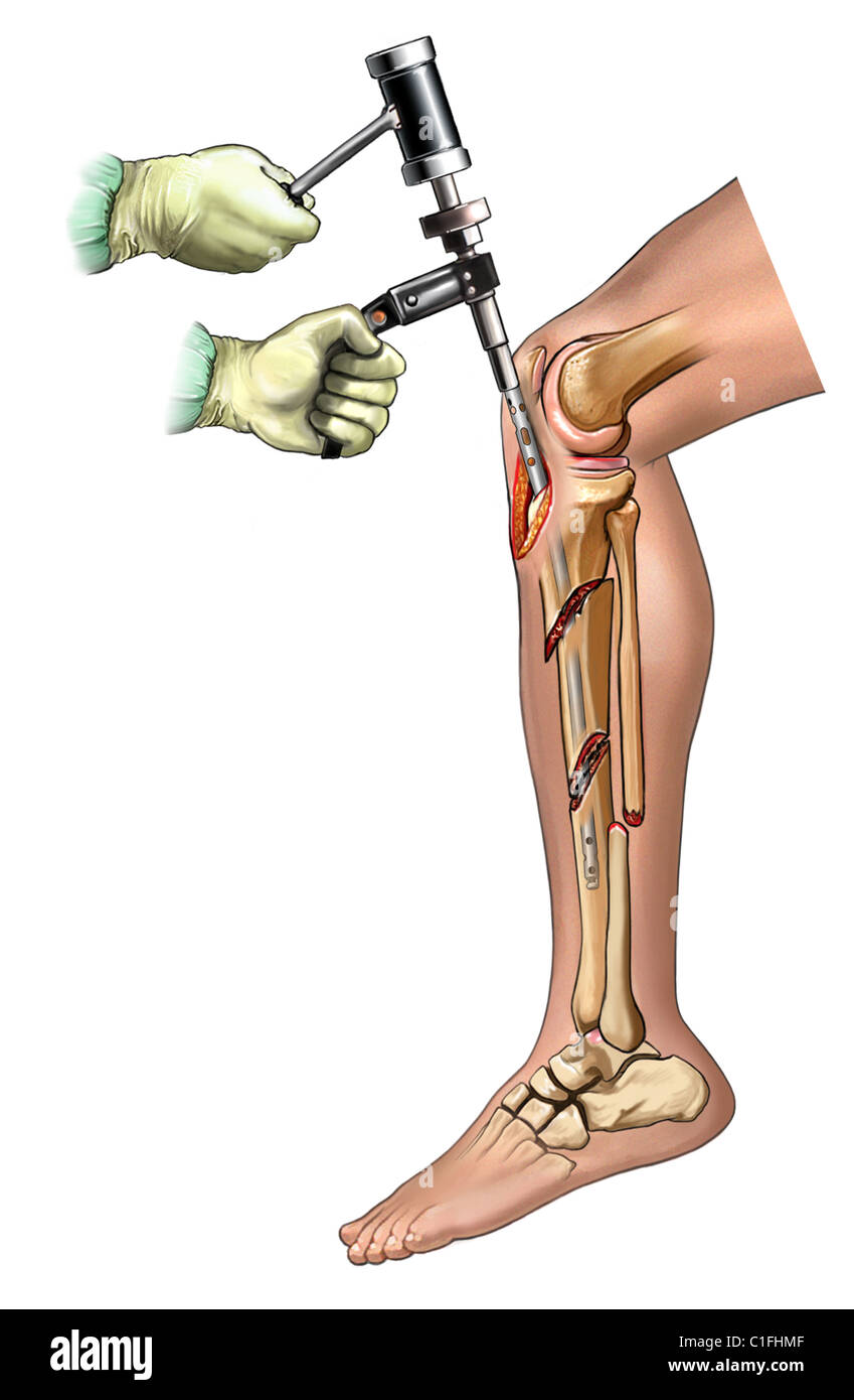 This medical illustration illustrates Intramedullary rod insertion step in a tibial fixation. - Stock Image