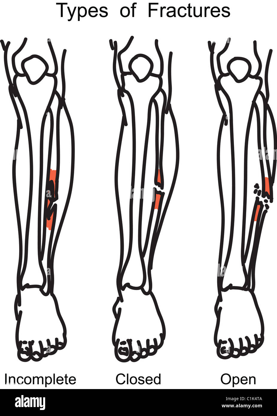 Types Of Human Bone Fractures Illustration Stock Photo 35456298 Alamy