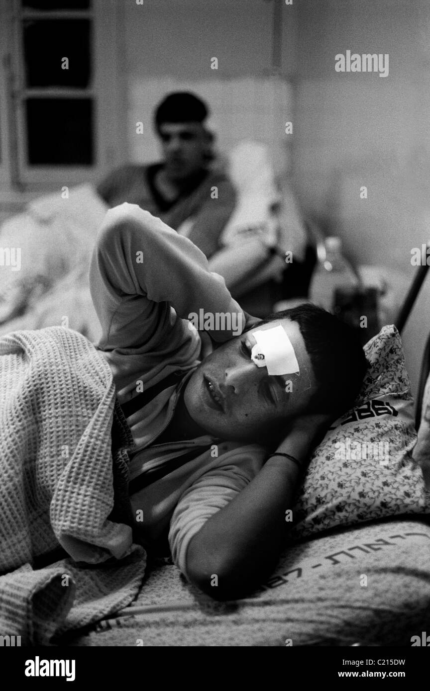 Jabalya Refugee Camp, Gaza 1988. Youths recovering from injuries sustained during the Intifada against the Israeli - Stock Image