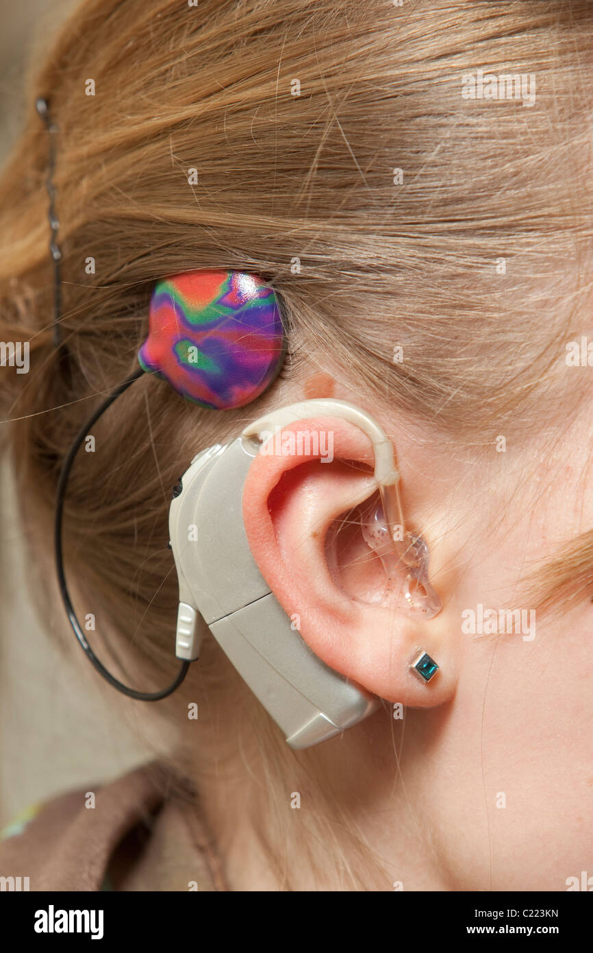 Lisa is wearing a hearing implant ( Cochlear implant ) - Stock Image
