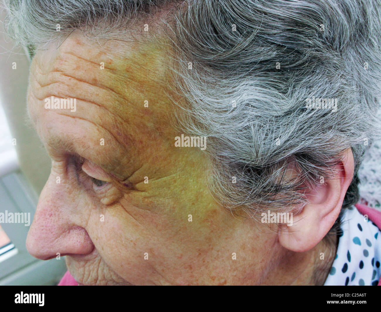 Old Face Bruising Stock Photos Old Face Bruising Stock Images Alamy