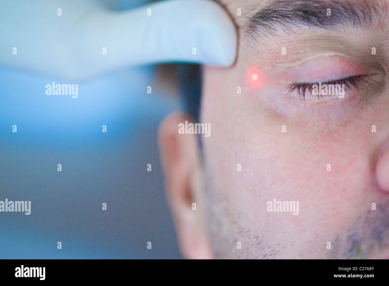 Man Receiving Laser Treatment on Face Stock Photo
