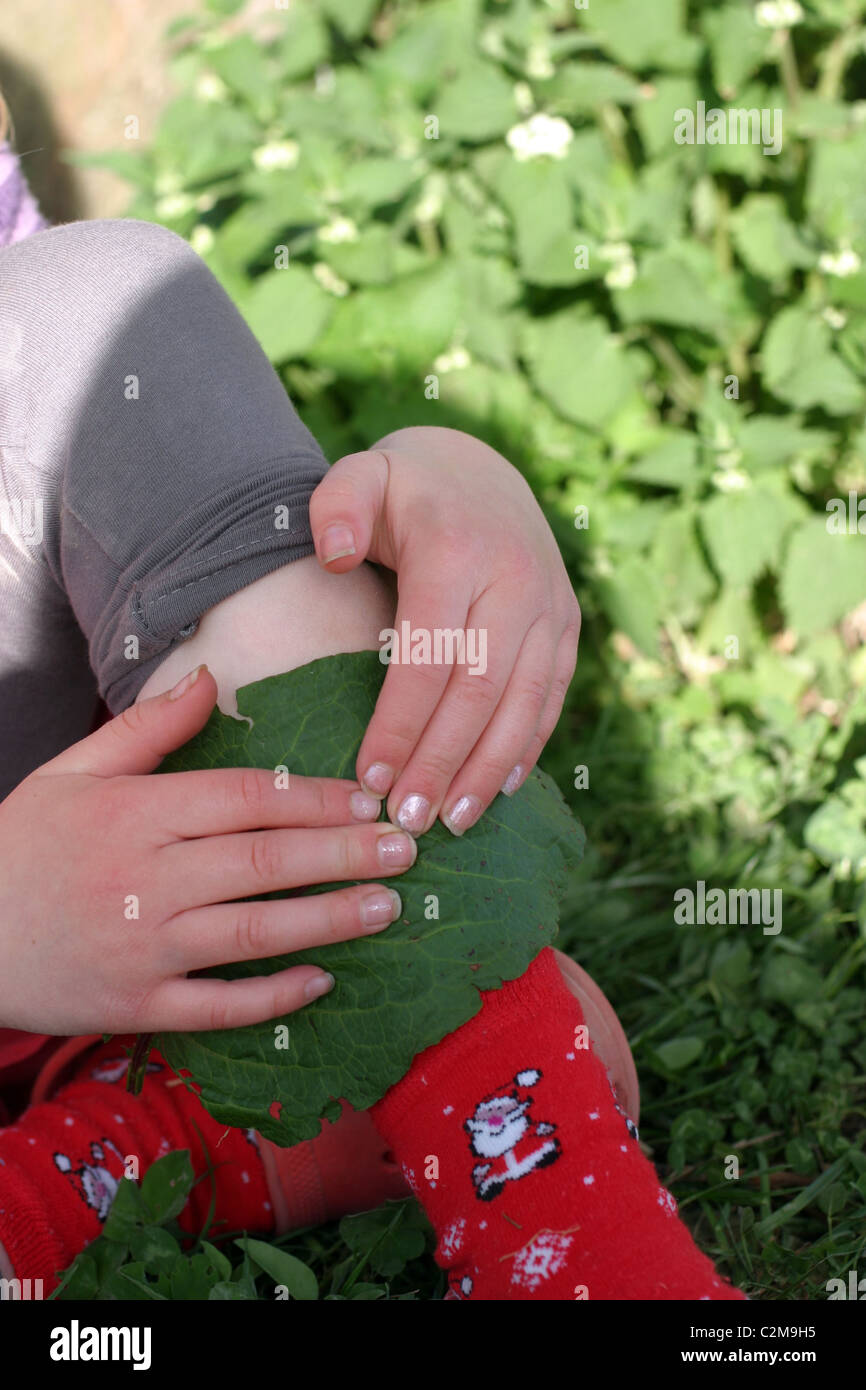 Young Girl rubbing a Dock Leaf on her Stinging Nettle Rash - Stock Image