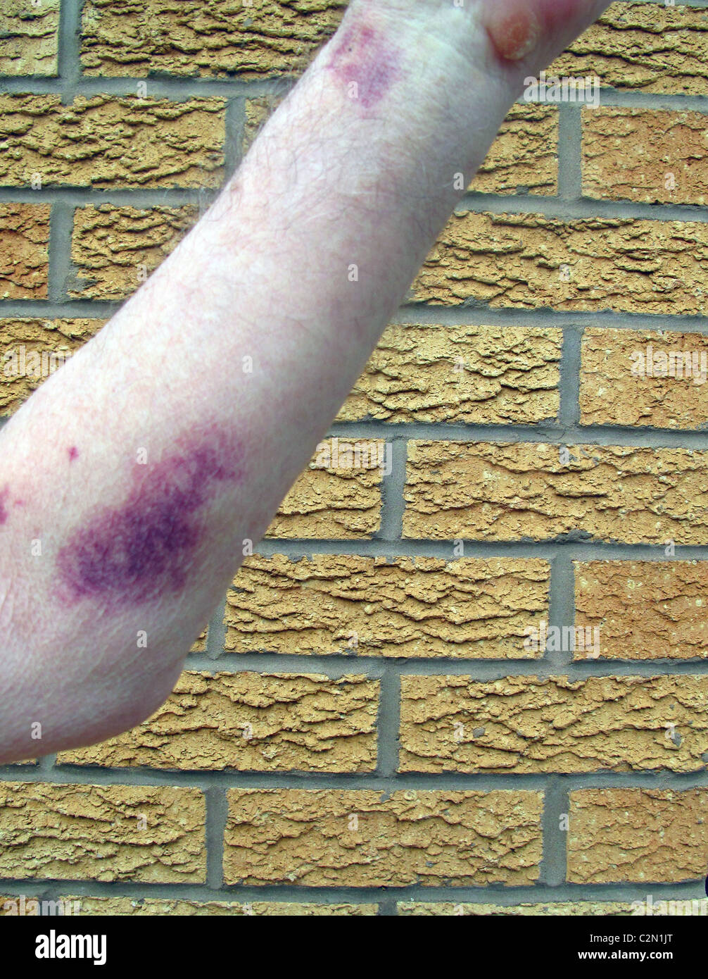 Close up of a badly bruised arm - Stock Image