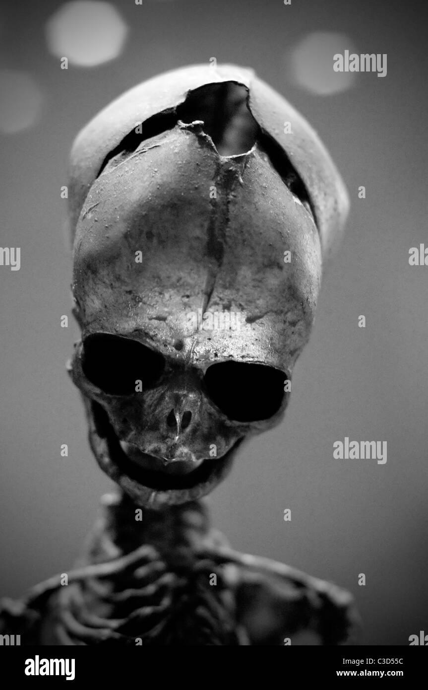 Deformed skull - Stock Image