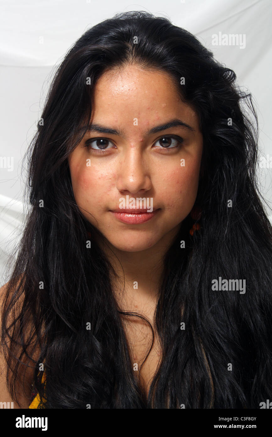 Acne Girl High Resolution Stock Photography And Images Alamy