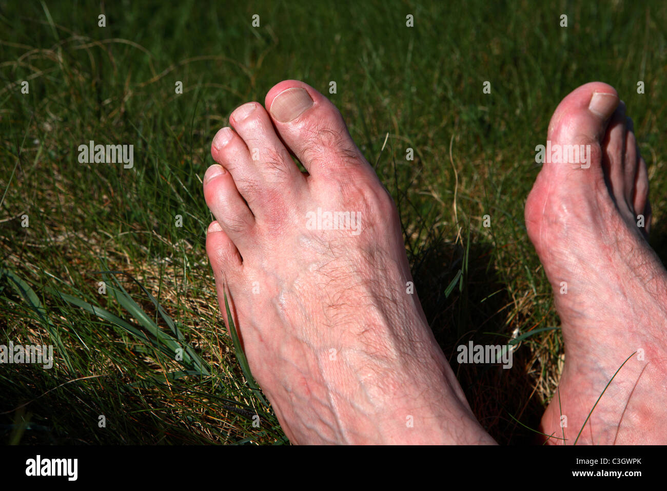 Man's feet with conjoined toes - Stock Image