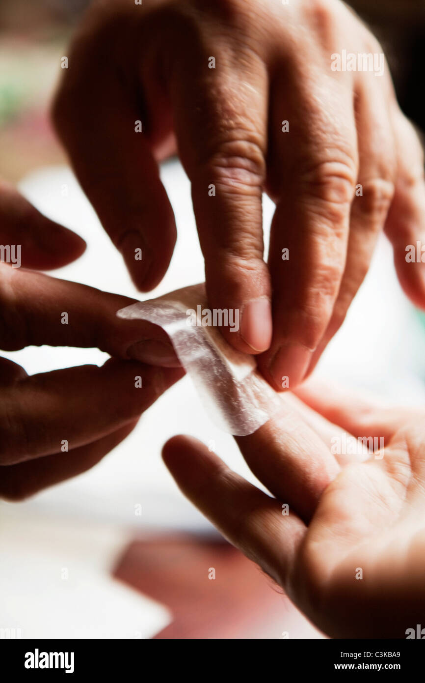 Close-up view of mans hand dressing flash wound of finger - Stock Image
