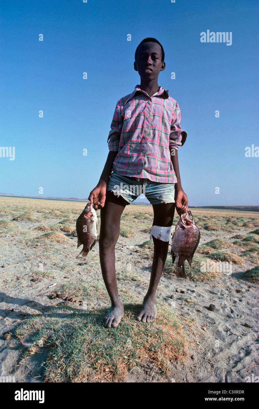 El Molo child suffering from Rickets. - Stock Image