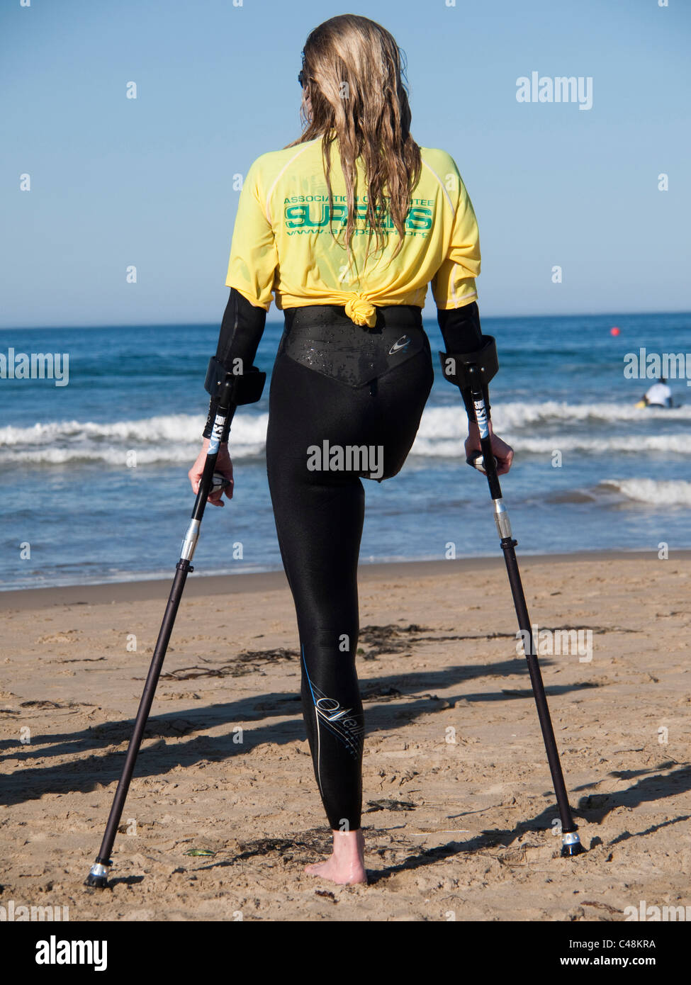 A woman who lost one leg to Chondrosarcoma, a cartilage-based tumor, watches other surfers during a surf clinic. - Stock Image