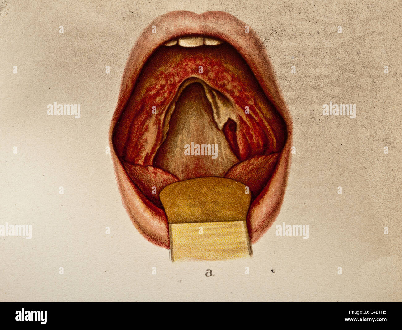 Soft Palate Mouth Stock Photos & Soft Palate Mouth Stock Images - Alamy