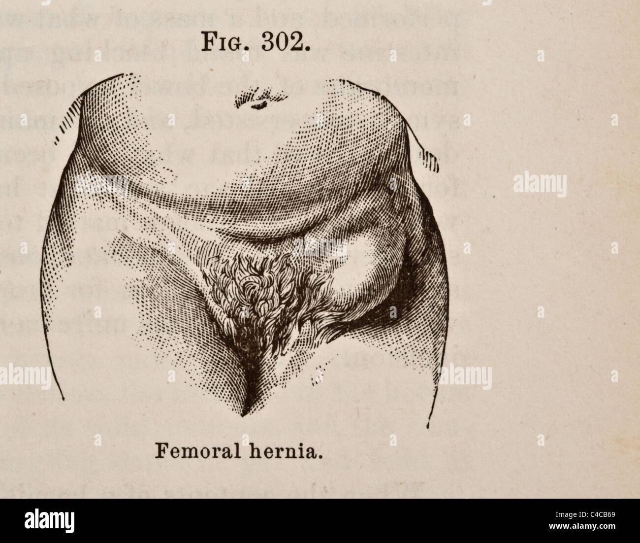 Antique Medical Illustration Depicting Hernia circa 1881 - Stock Image