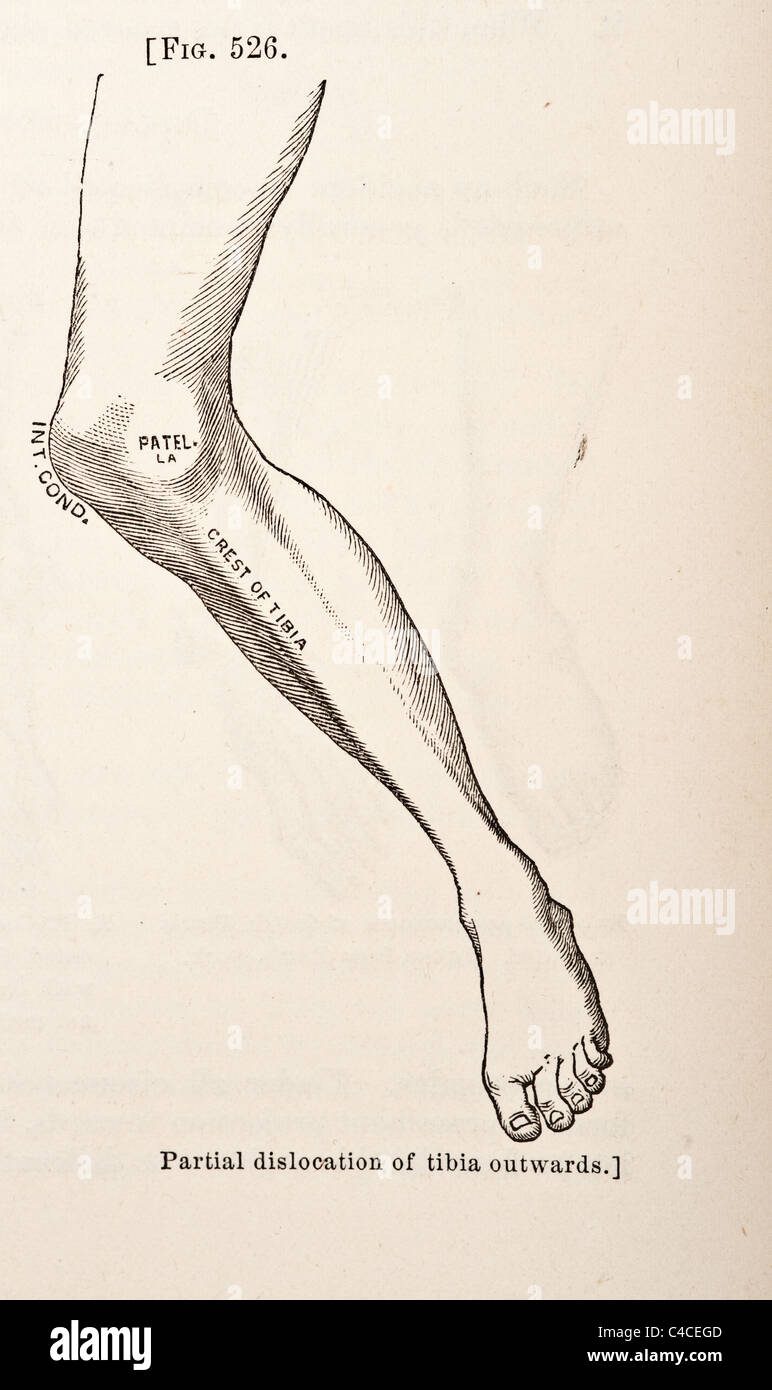 Antique Medical Illustration Depicting Dislocation of the Knee-Joint circa 1881 - Stock Image