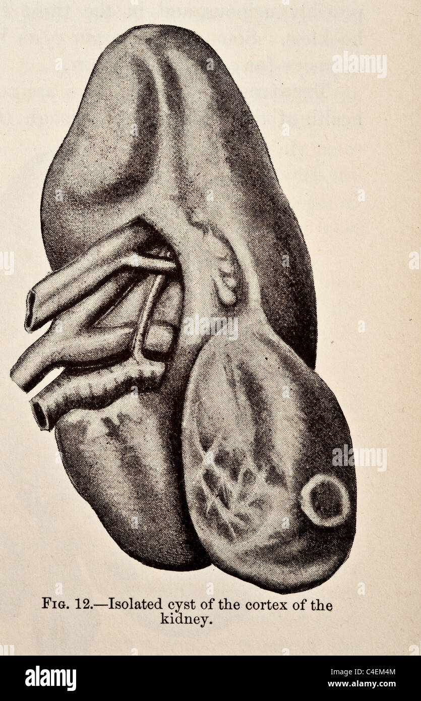 Genito-Urinary Diseases Syphilology and Dermatology copyright 1893 - Stock Image