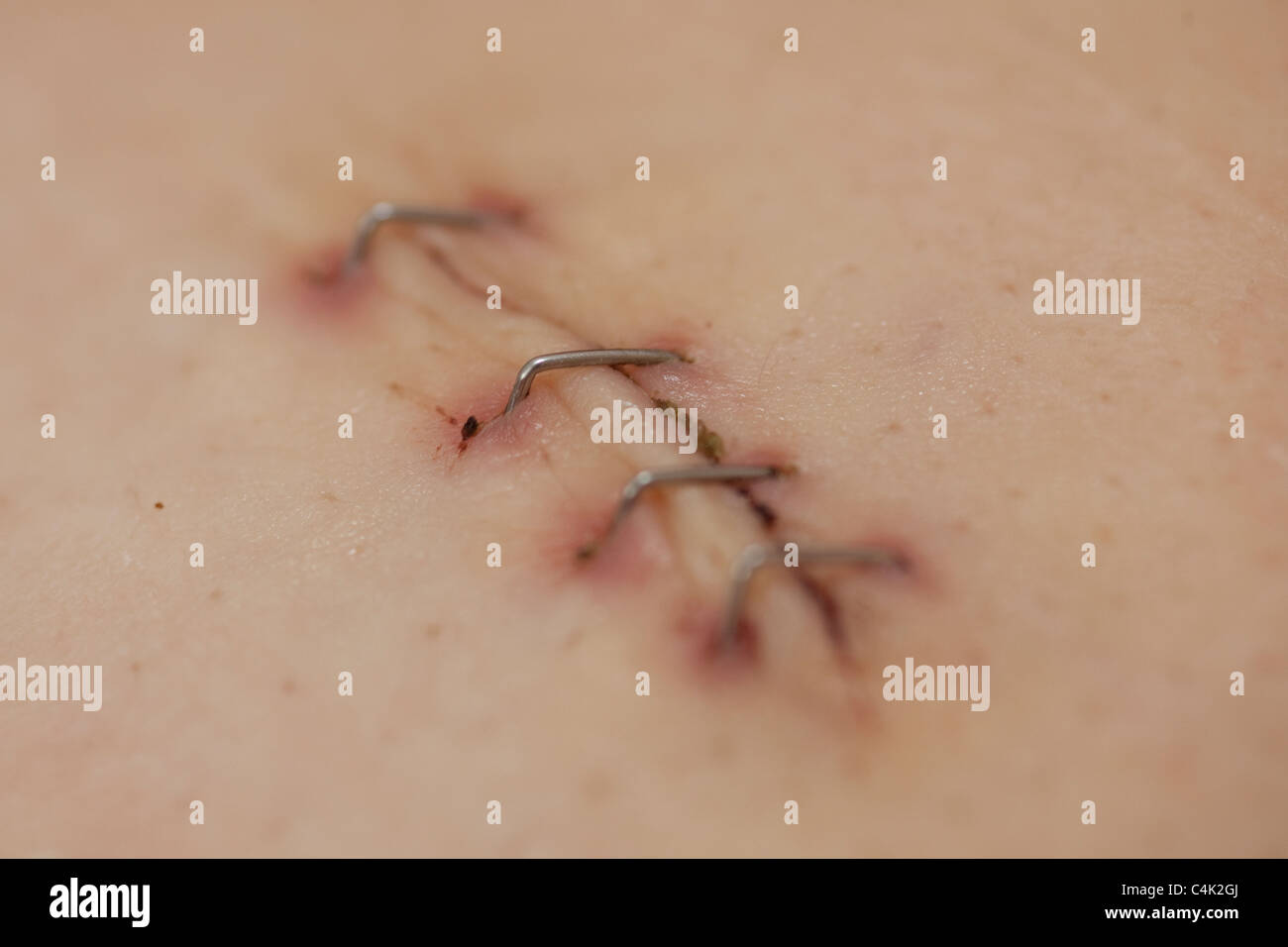 Laproscopic operation scar from a Cholecystectomy held together to heal with staples Stock Photo