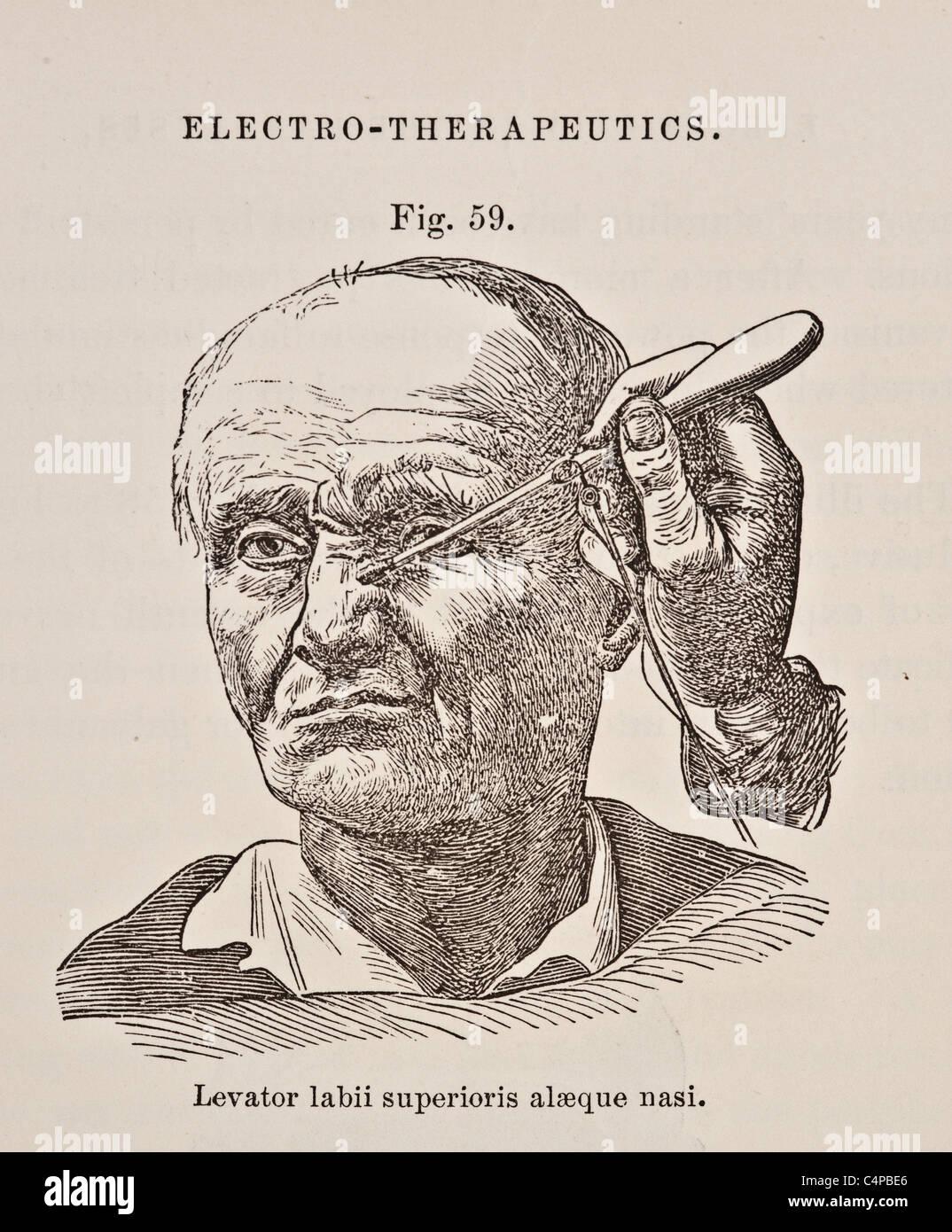 Illustration of Levator Labii Superioris Alaeque Nasi circa 1881 Stock Photo