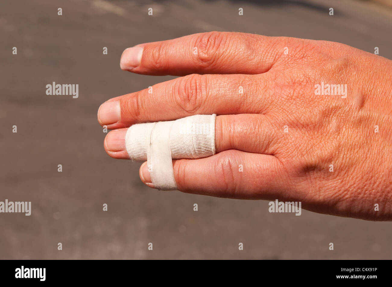A close up of a mans hand showing a bandage and a dislocated finger trying to heal - Stock Image