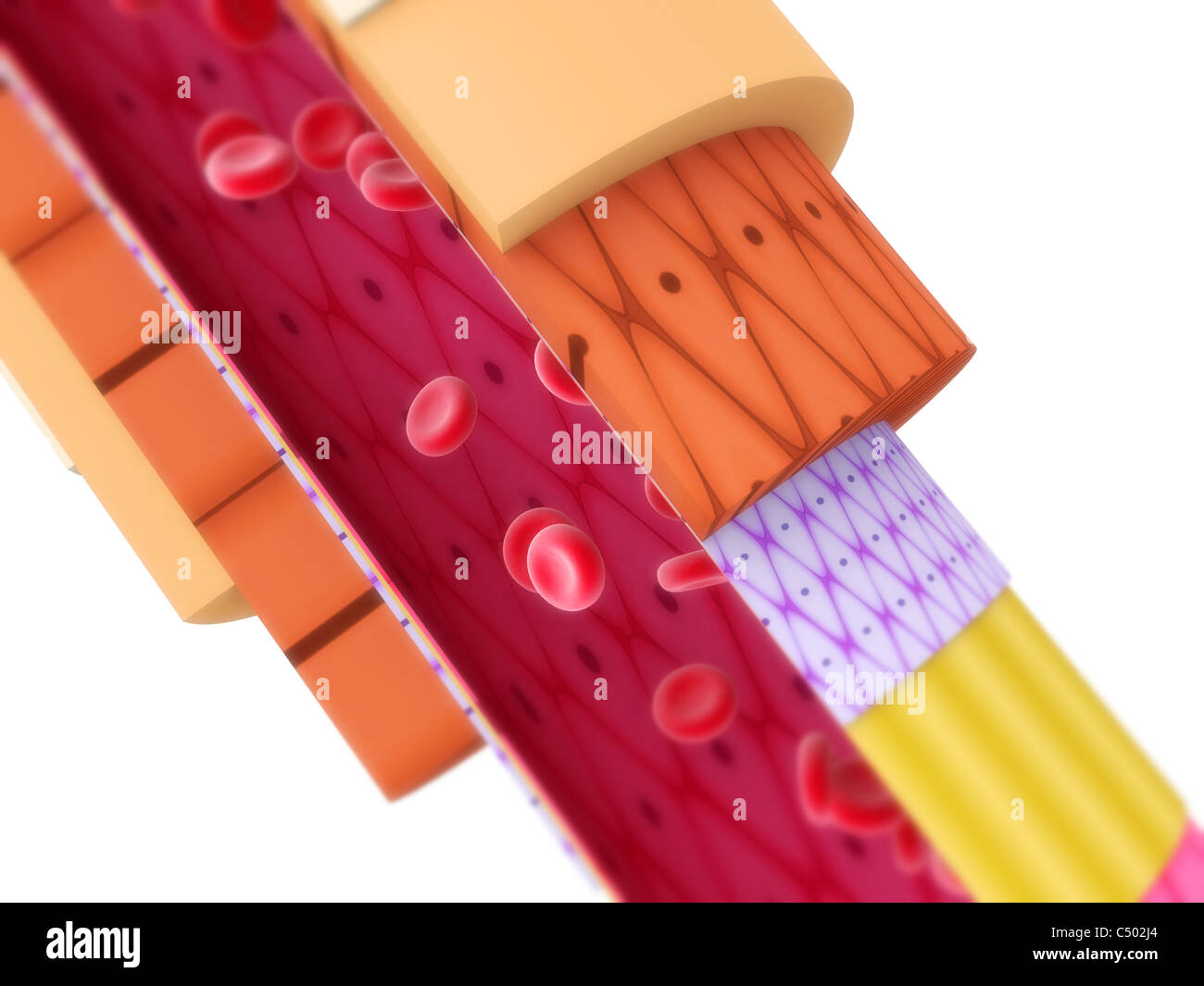 Artery cut off - Stock Image