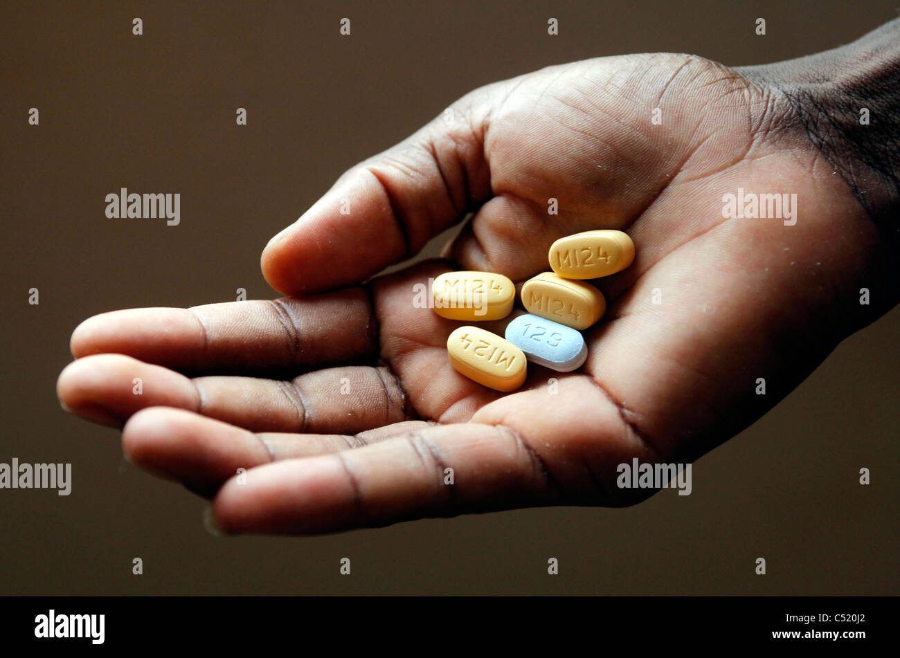 Hand with five tablets high-measured ARV Antiretoviral Medicine. Daily ration of a person hardly sick from HIV to - Stock Image