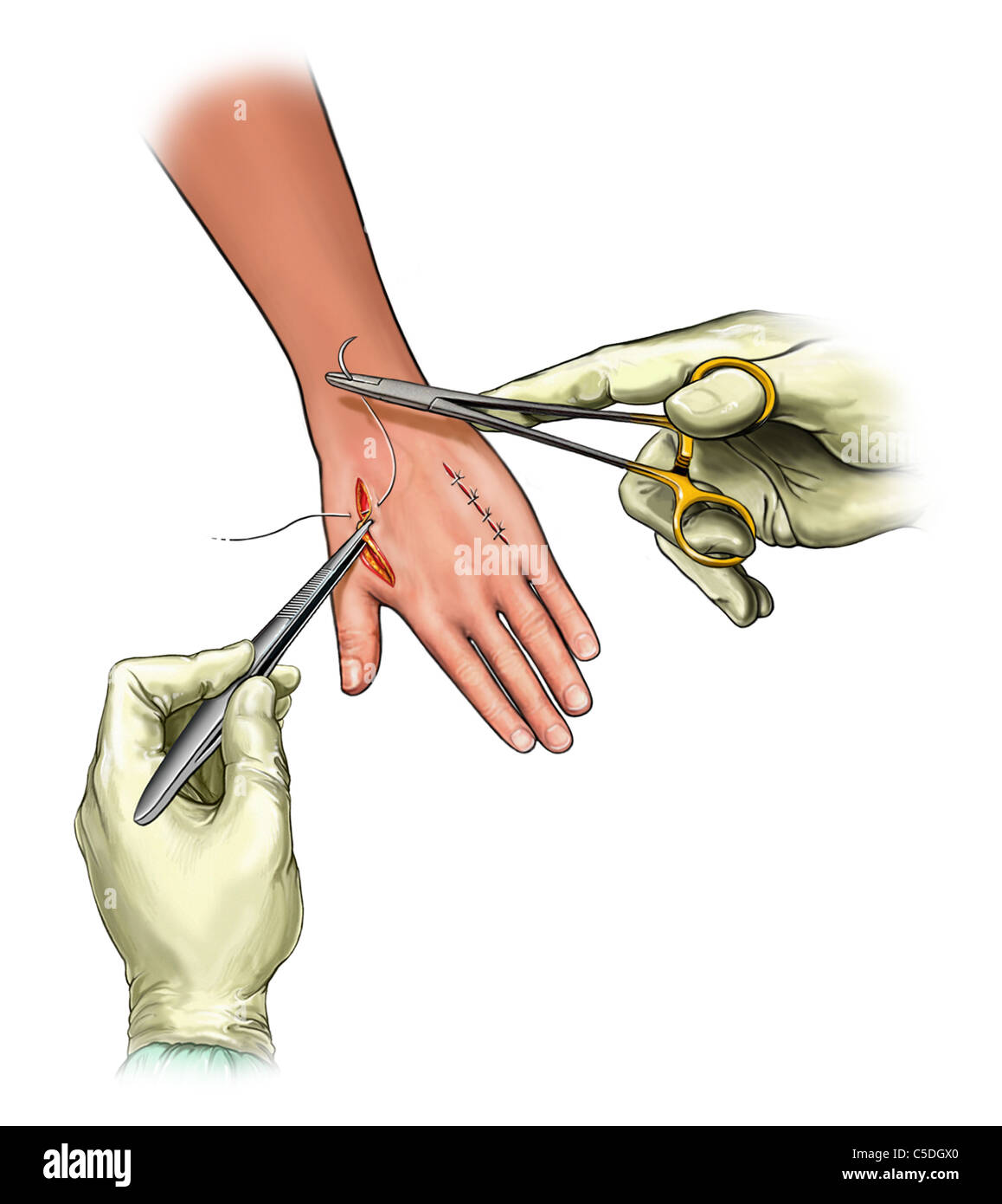 Closure of fasciotomy incisions on dorsal hand - Stock Image