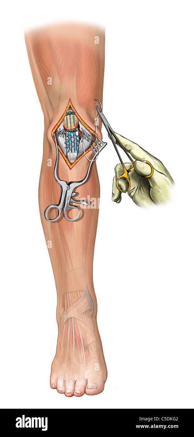 Knee Repair Of Patellar Tendon And Retinaculum Tears Krackow
