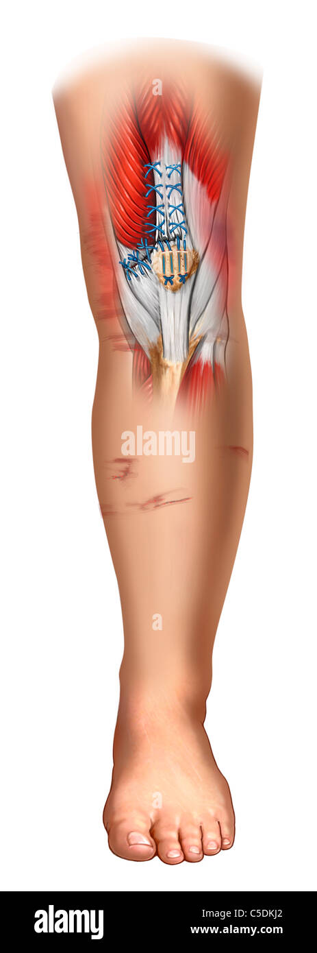 Tear Medial Retinaculum Stock Photos Tear Medial Retinaculum Stock