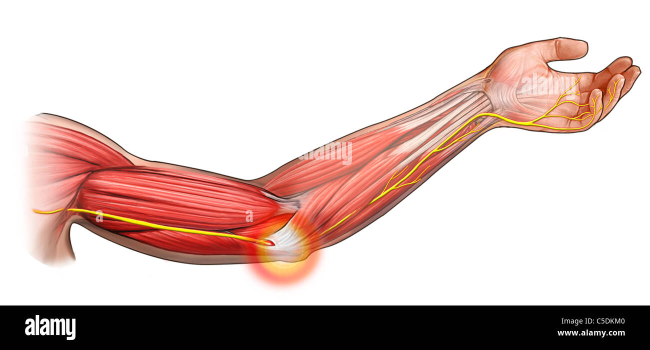 Ulnar Nerve Impingement Stock Photo 37794848 Alamy