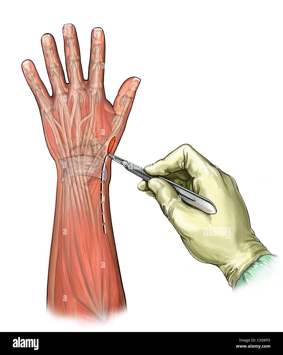 Dorsal Wrist Stock Photos & Dorsal Wrist Stock Images - Alamy