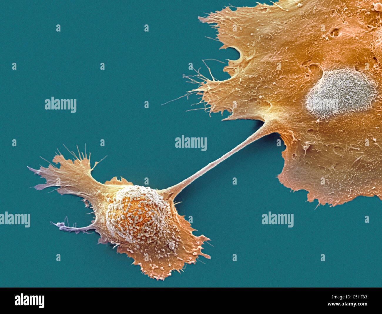 Pancreatic cancer cells, SEM - Stock Image