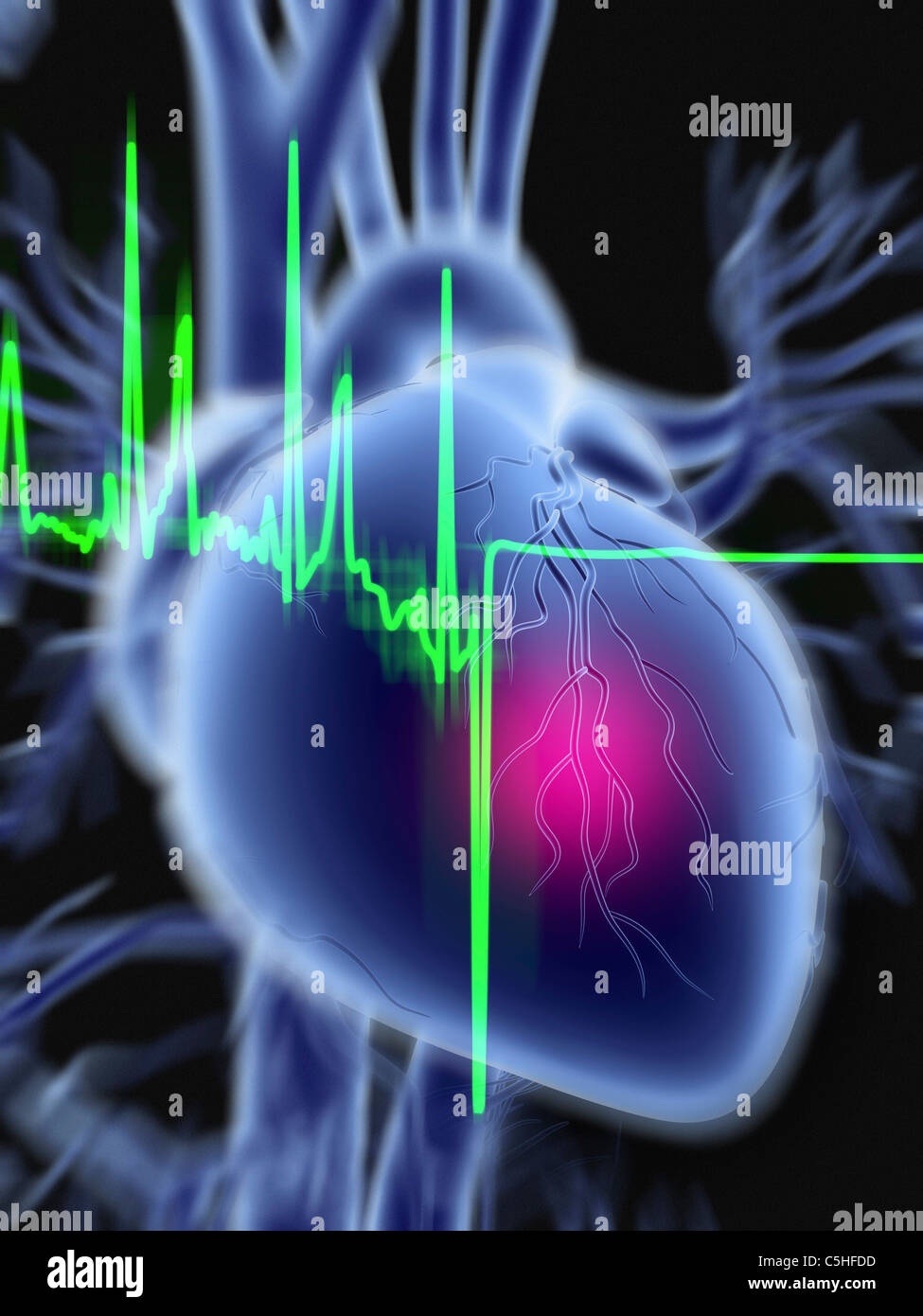 Heart attack and ECG trace - Stock Image