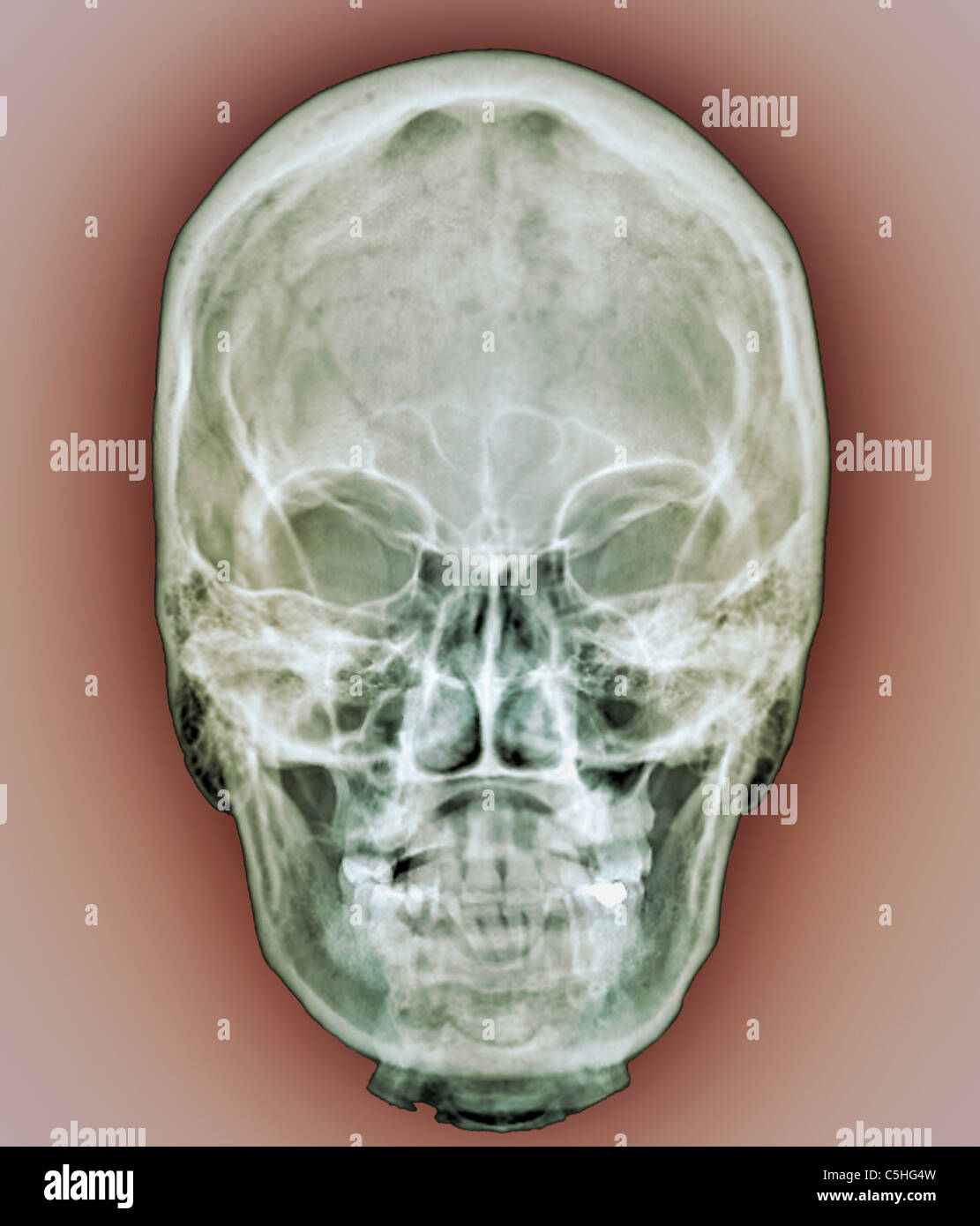 Normal Skull X Ray Stock Photos & Normal Skull X Ray Stock Images ...
