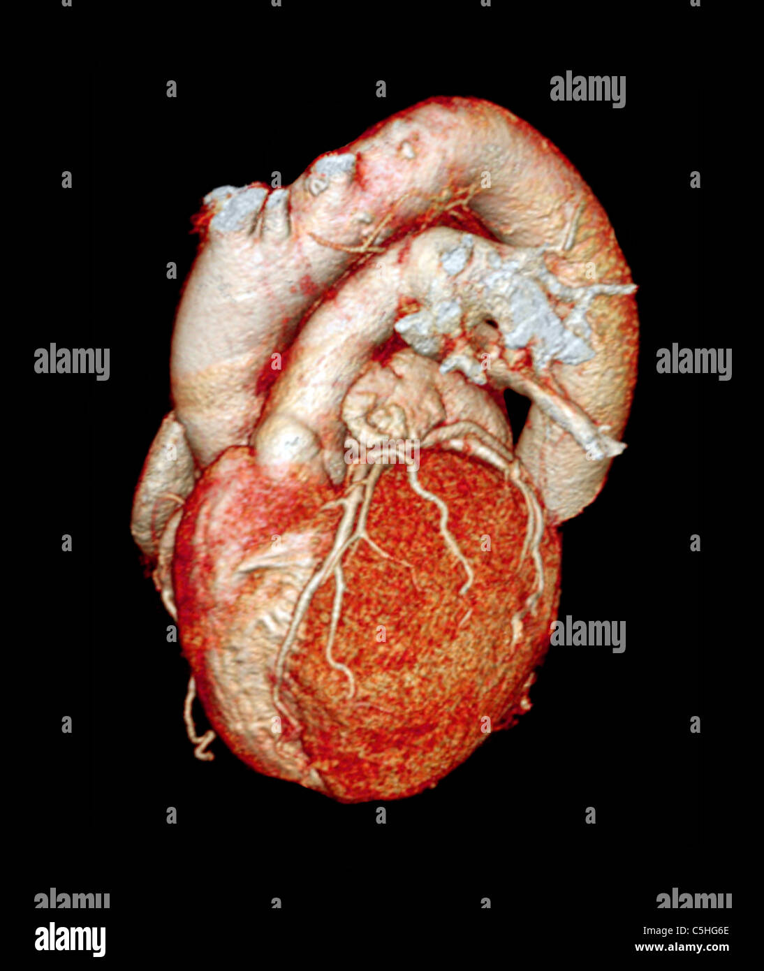 Normal heart, 3D CT scan Stock Photo: 37879926 - Alamy