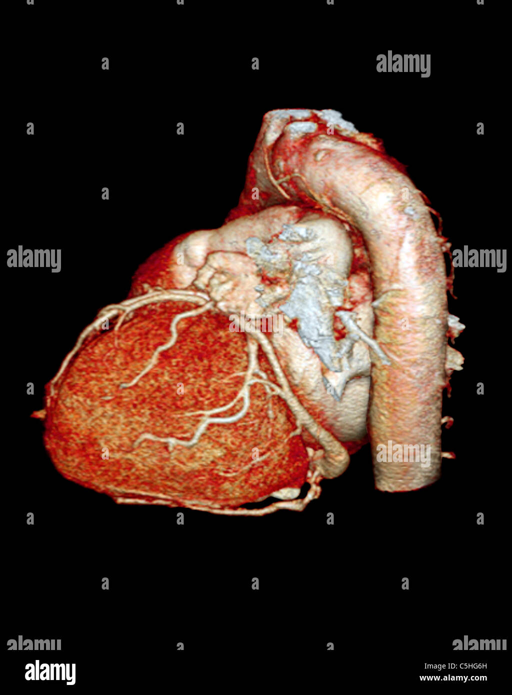 Normal heart, 3D CT scan Stock Photo: 37879929 - Alamy