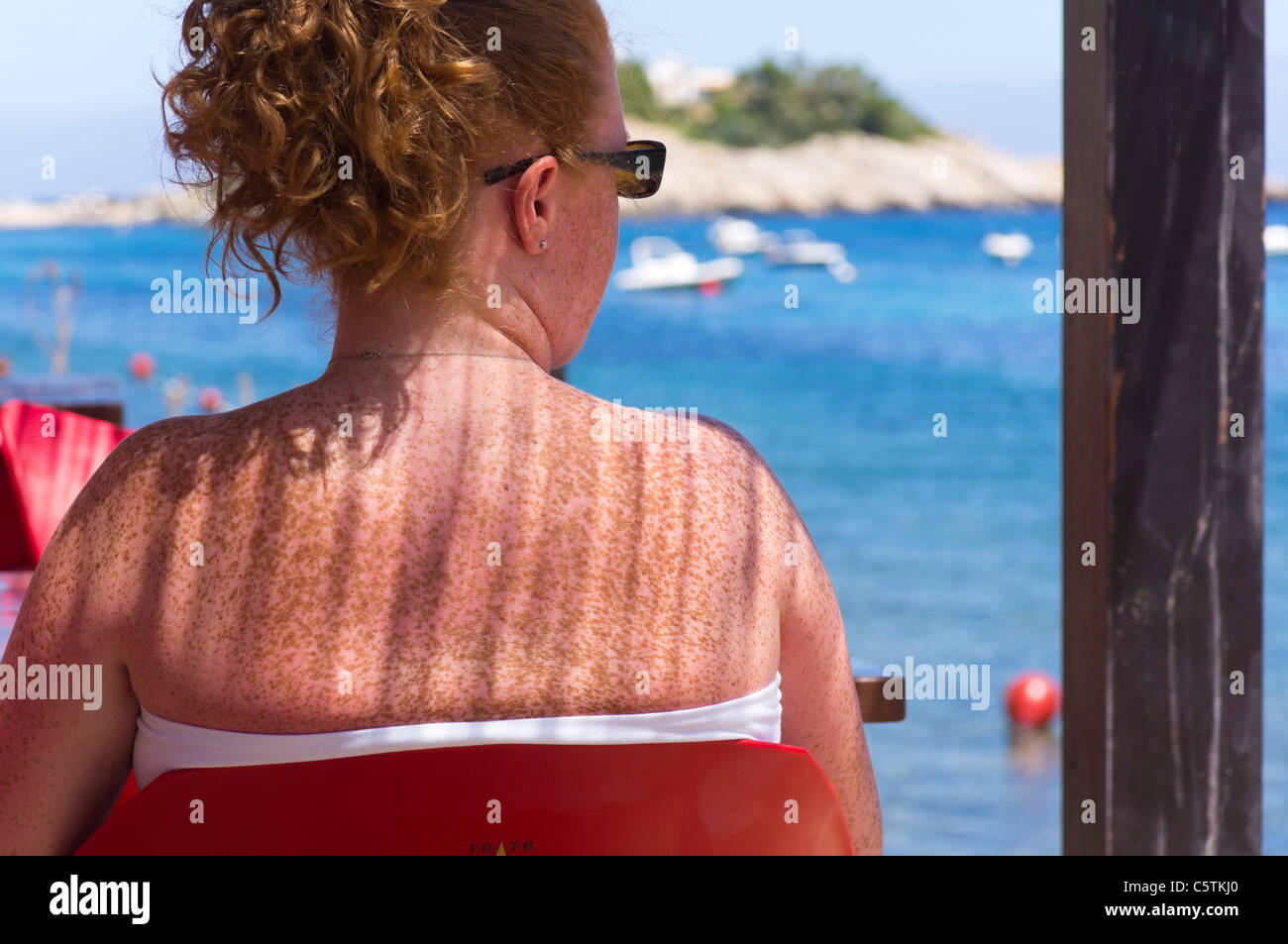 Ibiza, Balearics, Spain - suntan risks - woman with fair Northern skin ginger hair and freckles sitting in partial - Stock Image