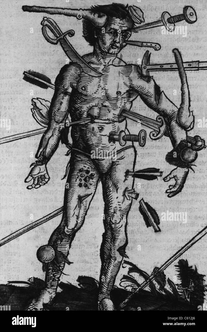 WOUND MAN. A man with wounds from many different kinds of weapons from a field manual for military surgeons. Woodcut - Stock Image