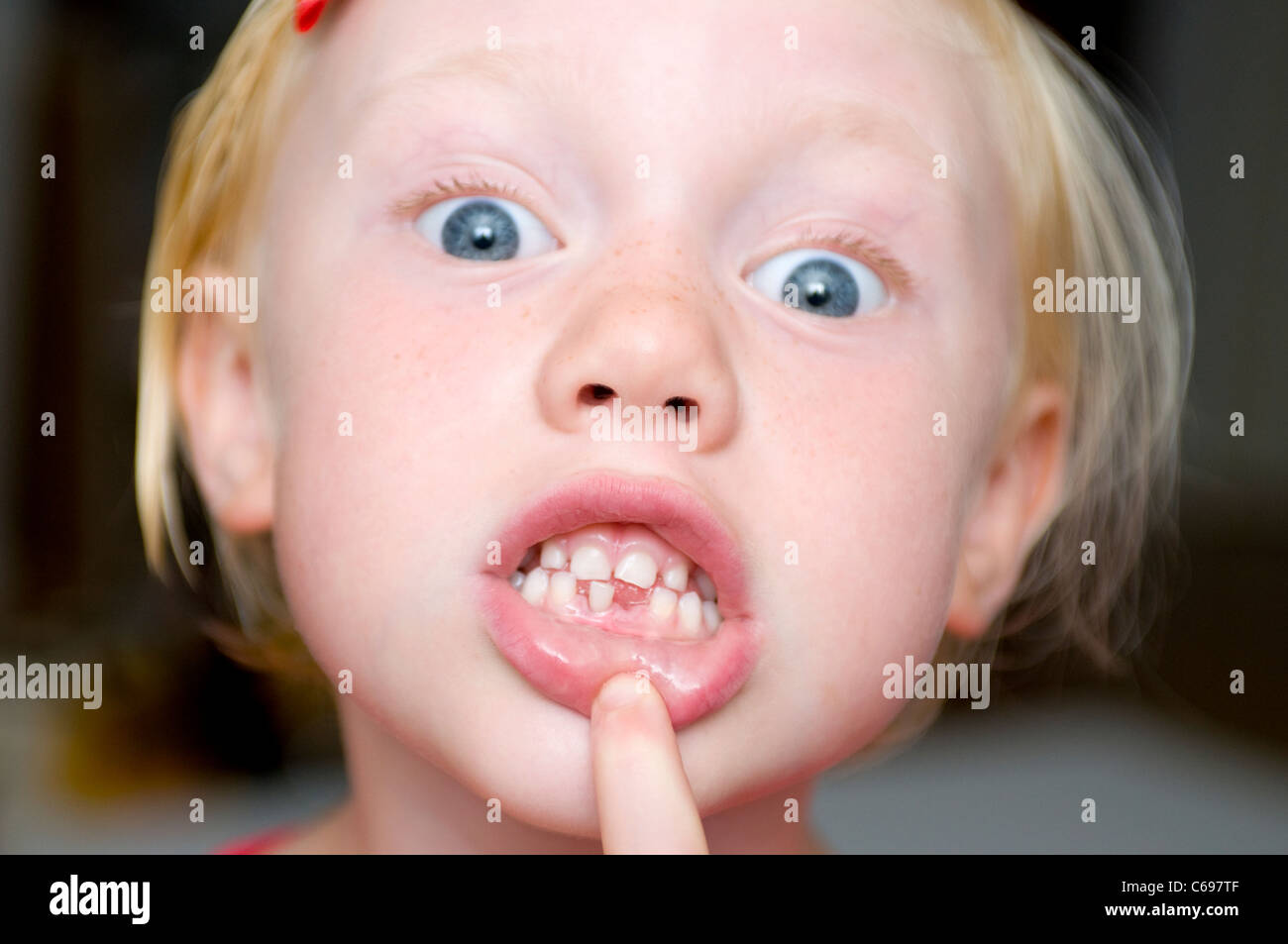 Young female child with first tooth missing - Stock Image