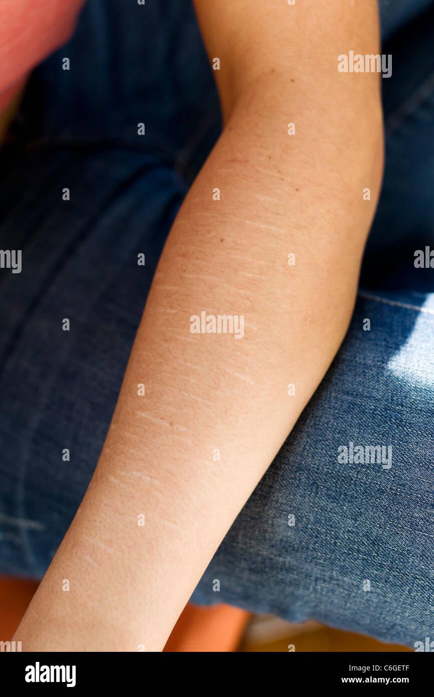 Self harmed arm - Stock Image