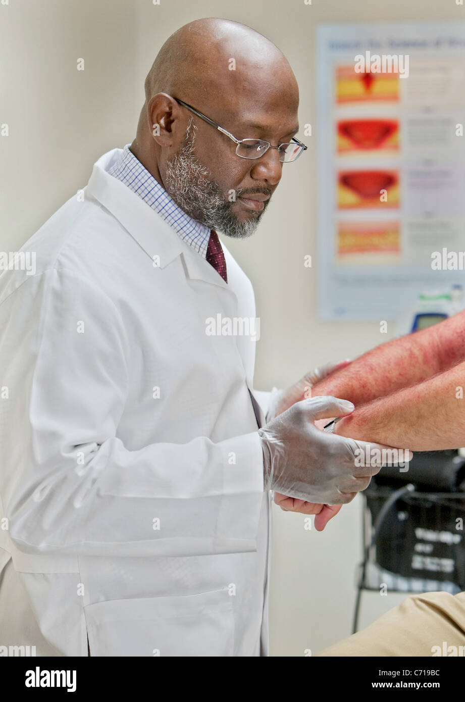 A doctor checks a rash on a patient's arm. - Stock Image