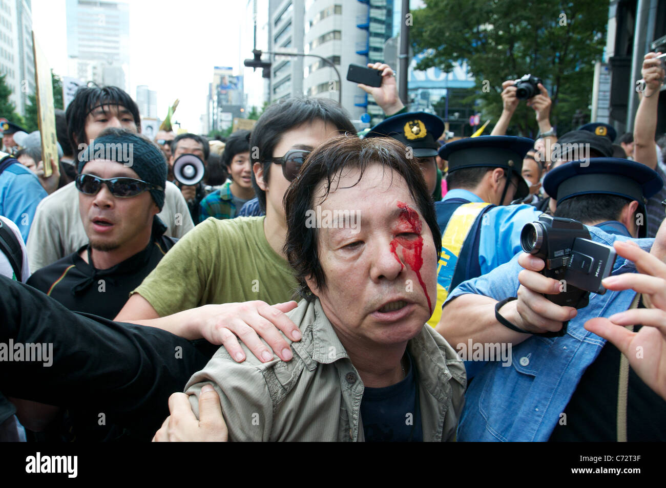 A man injured in a scuffle with Police is cared for by fellow protesters at an Anti-Nuclear protest on the 6 month - Stock Image