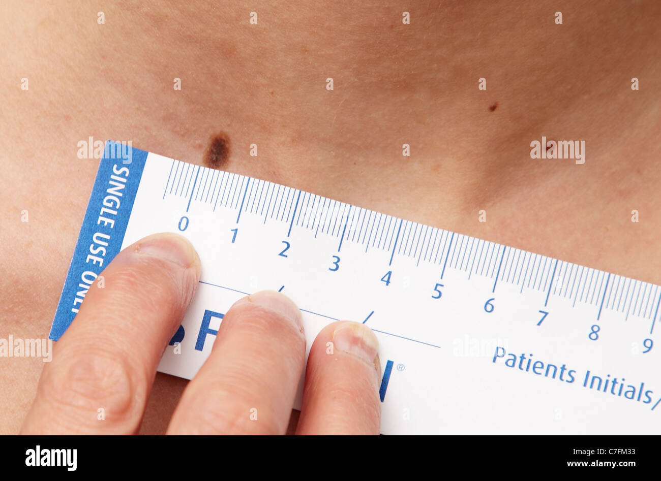 Close up of mole measurement - Stock Image