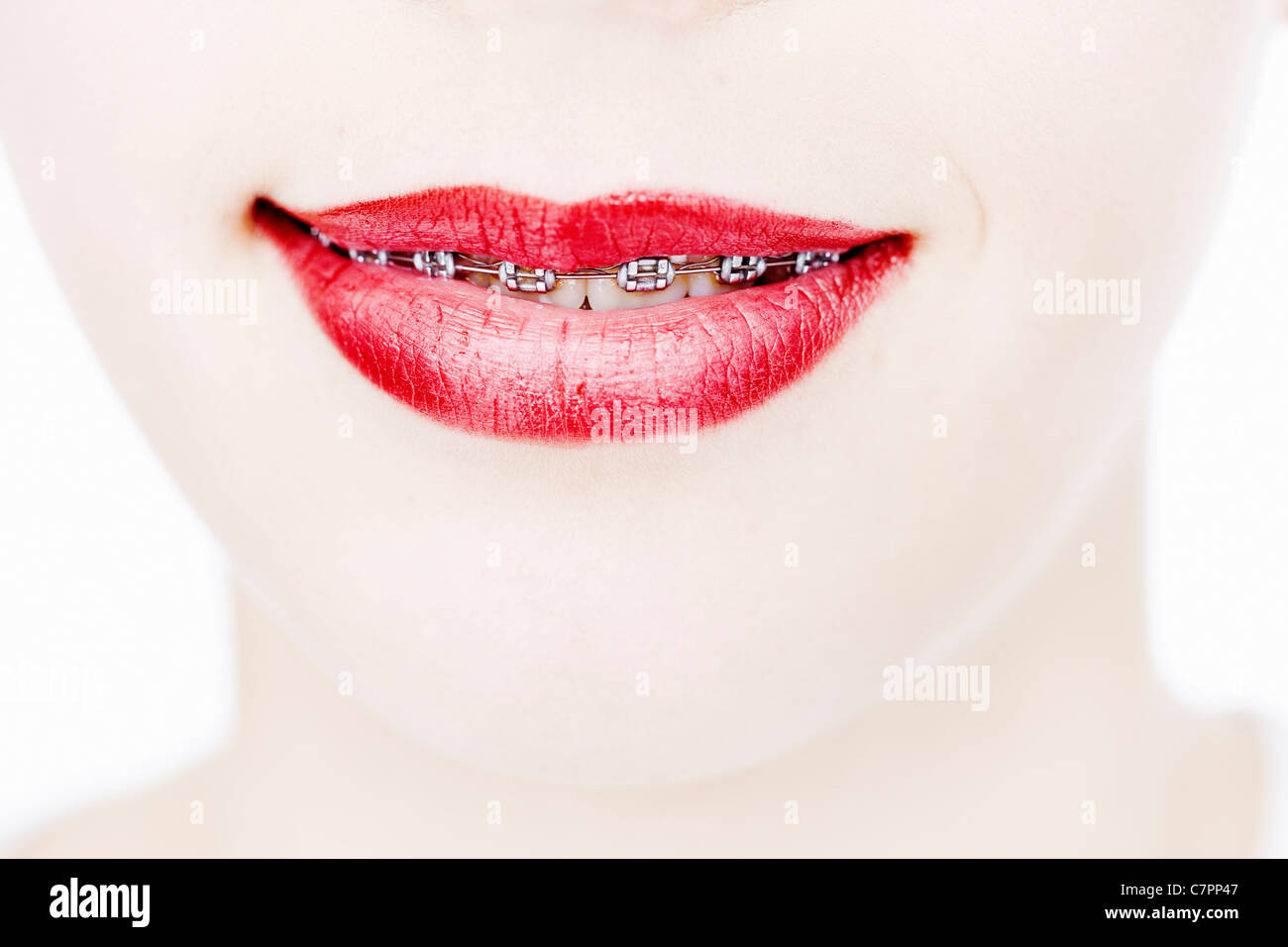 Close up of woman in braces - Stock Image