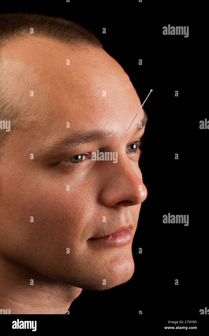 Young man receiving acupuncture in his forehead - Stock Image