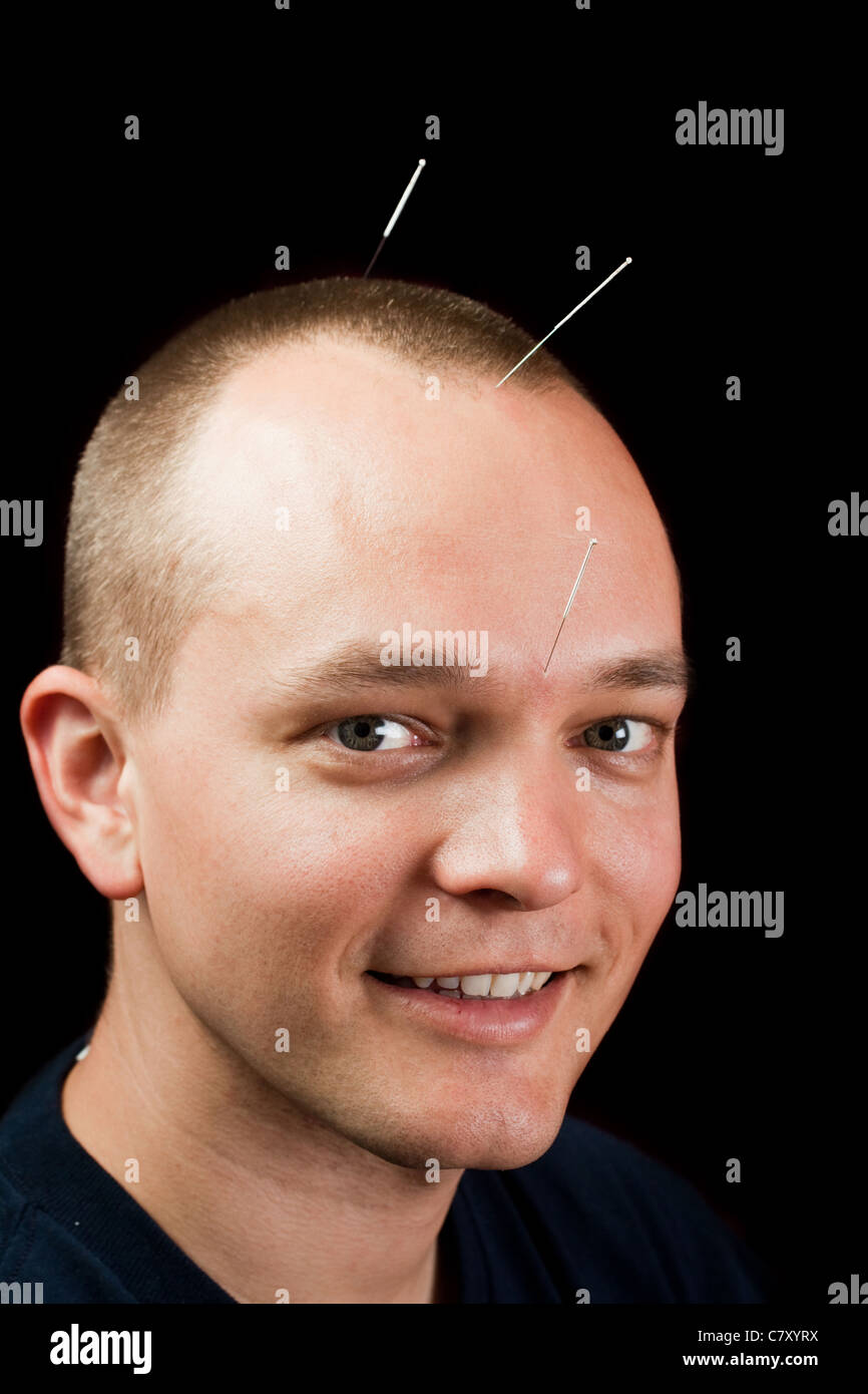 Man receiving cranial acupuncture, looking at camera - Stock Image