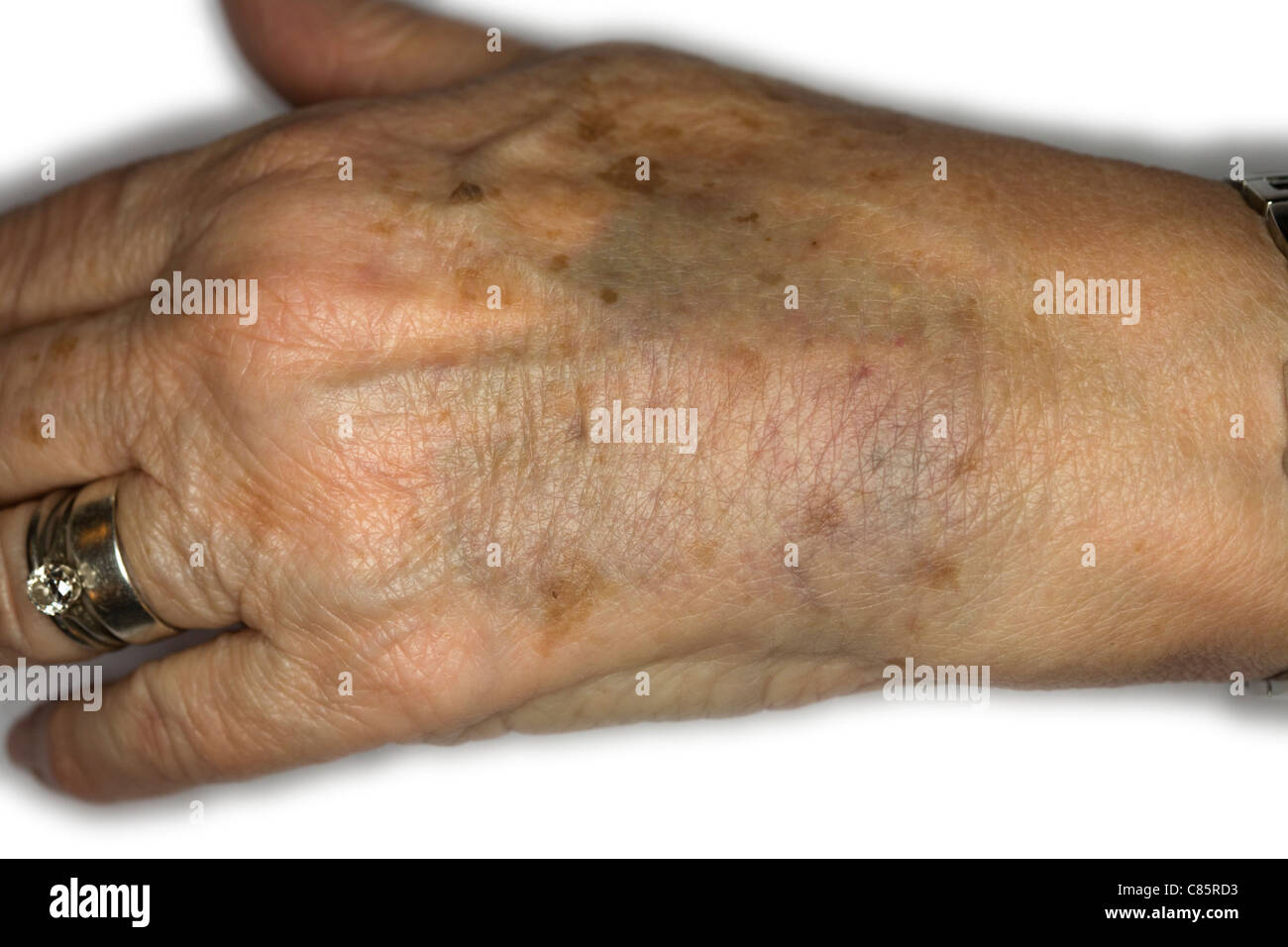 Elderly Woman Bruised Hand - Stock Image