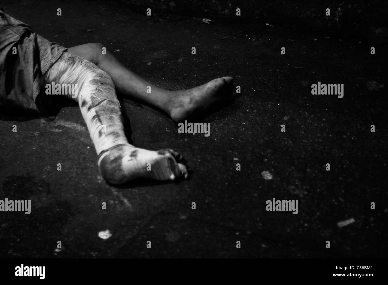 A man with a bandaged leg lies on the streets of Mumbai - Stock Image